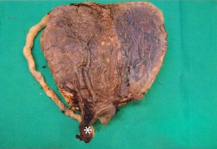 placenta with a vasa previa